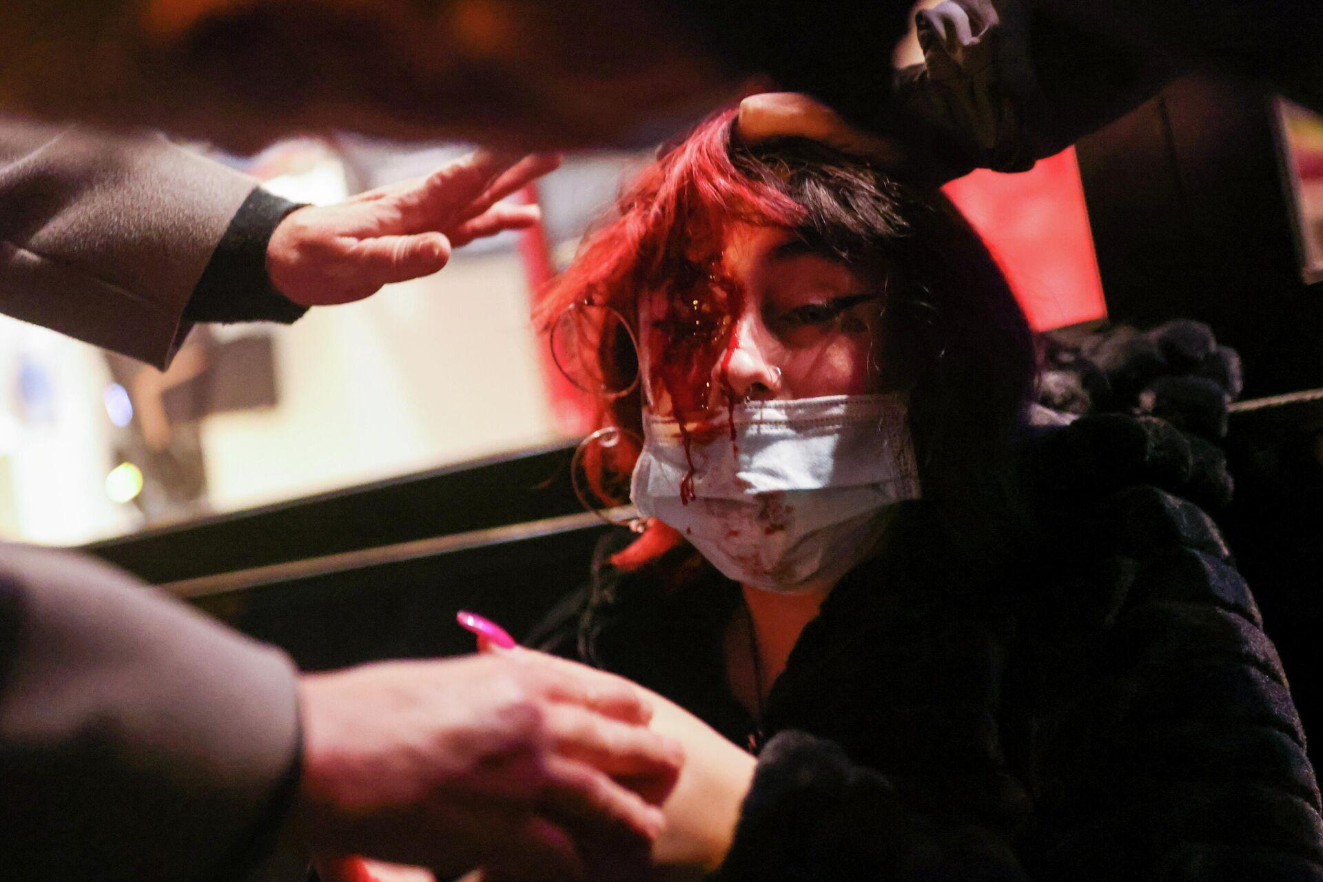 Mujer herida durante los disturbios en Barcelona por la detención del rapero Pablo Hasél - Sputnik Mundo, 1920, 16.02.2021
