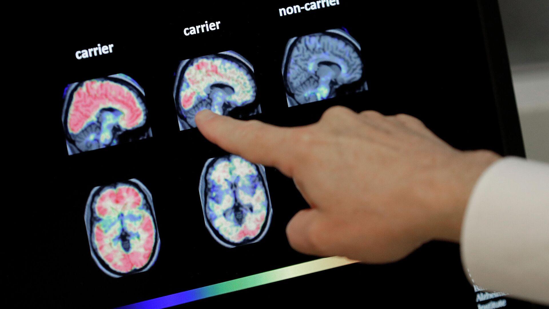 En esta foto de archivo del 14 de agosto de 2018, un médico observa una tomografía computarizada de un cerebro.  - Sputnik Mundo, 1920, 21.09.2021