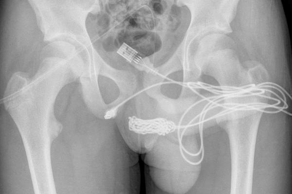 El cable USB en los genitales del joven - Sputnik Mundo