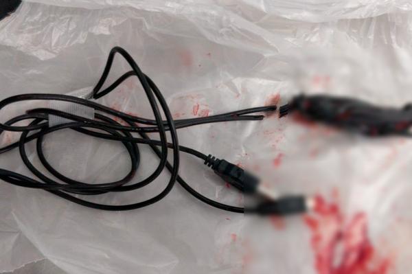El cable USB extraído de la uretra del joven - Sputnik Mundo
