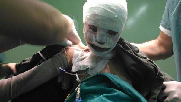 Ahd Al-Khaderi, niña víctima de un incendio en Alepo - Sputnik Mundo