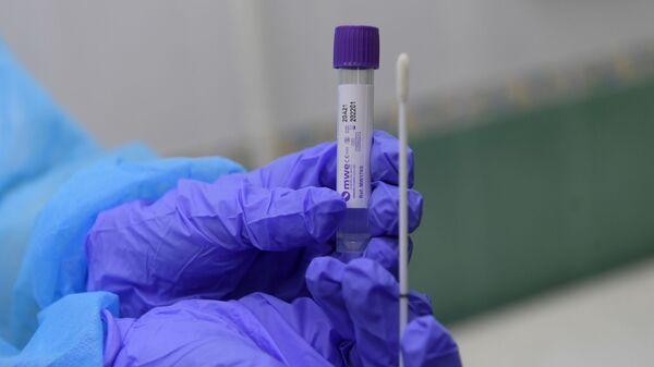 Un test para diagnosticar el coronavirus - Sputnik Mundo