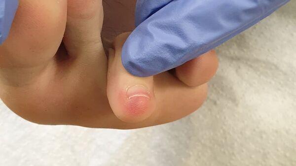 Mancha púrpura en el pie, síntoma de coronavirus - Sputnik Mundo