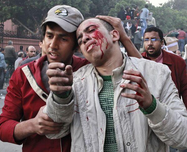 En los disturbios que azotan a Egipto recibieron heridas 5.000 personas - Sputnik Mundo